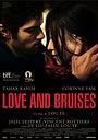 Фильм «Любовь и ссадины» (2011)